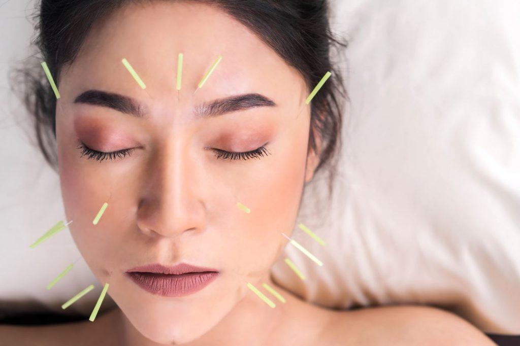 l'aculifting est une technique de lifting par acupuncture qui permet de lutter contre le vieillissement de la peau